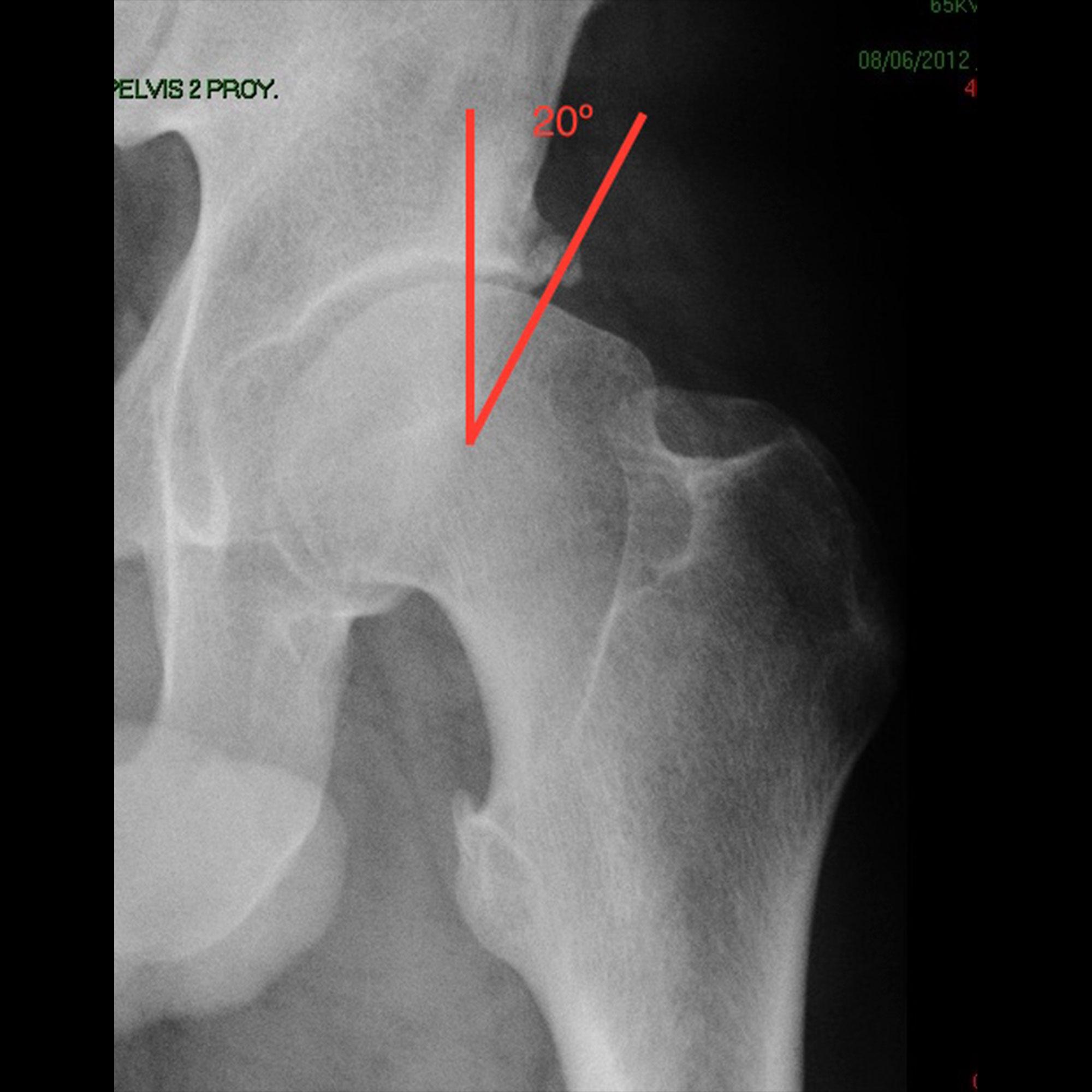 Radiografía con imagen de displasia de cadera por falta de cobertura acetabular
