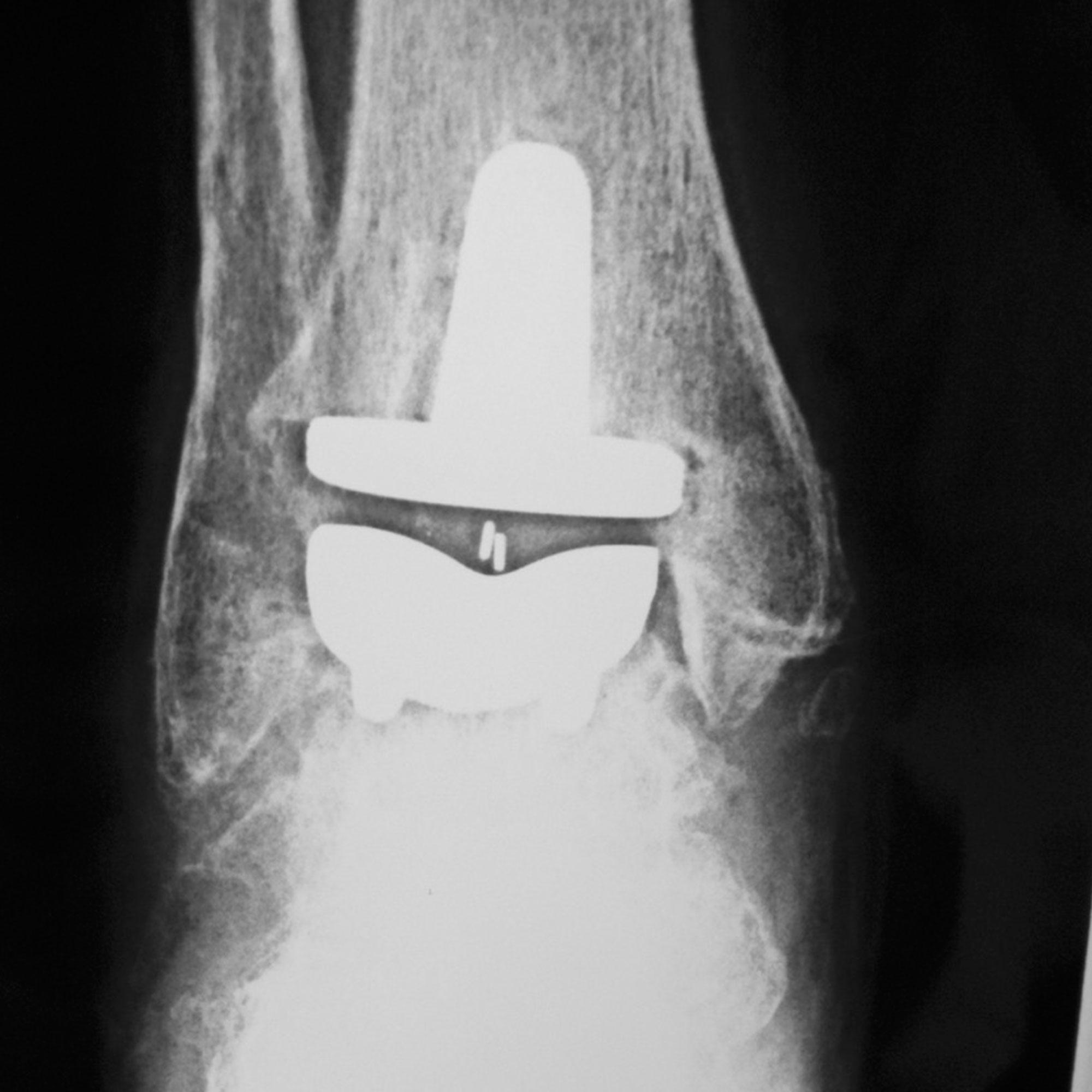 Prótesis de tobillo. Vista frontal.