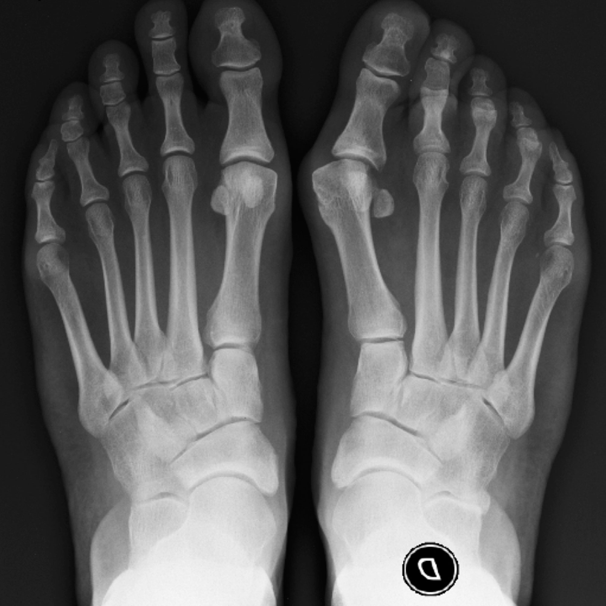 Hallux valgus pie izquierdo