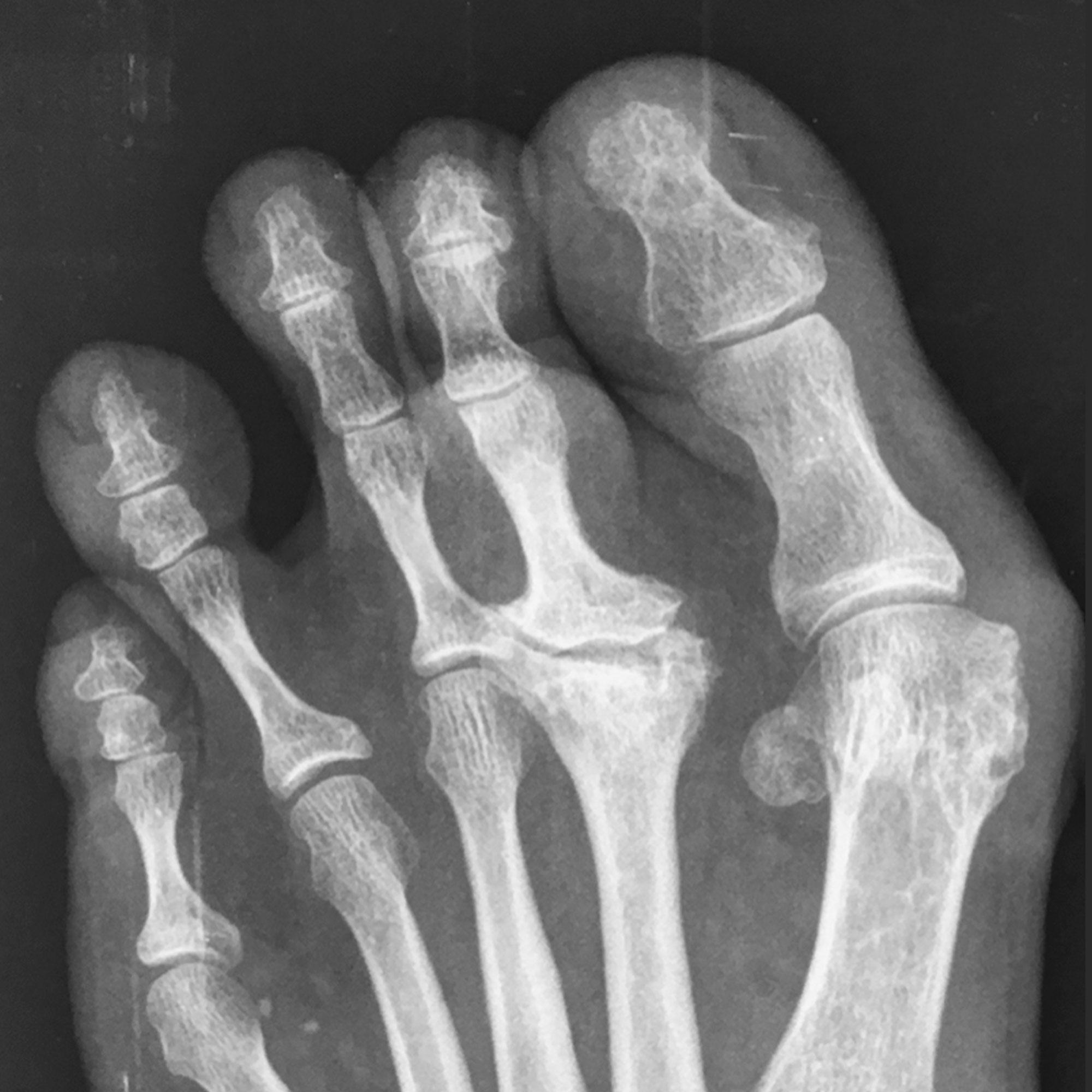 Radiología típica de enfermedad de Freiberg.