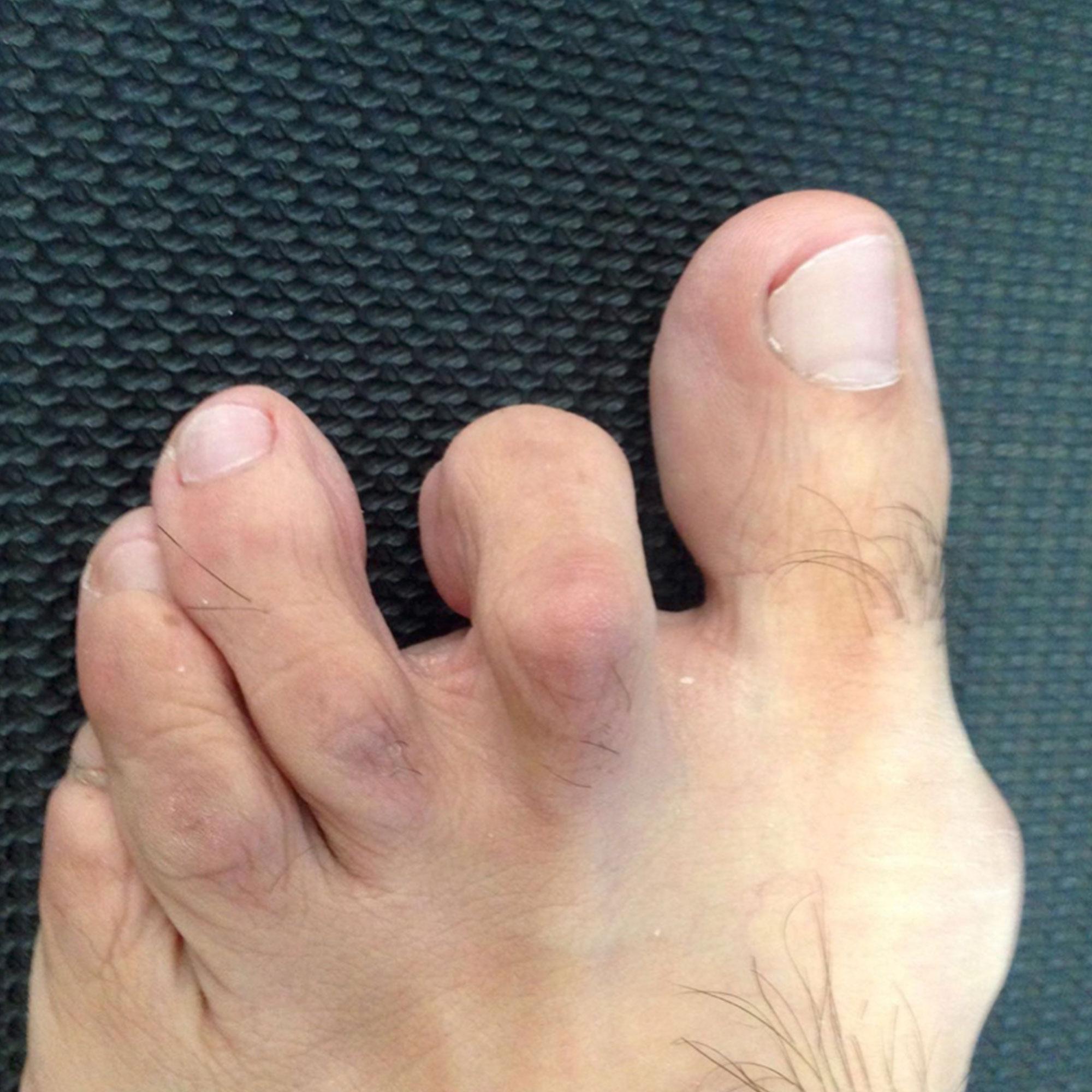 Segundo dedo en garra visión frontal.