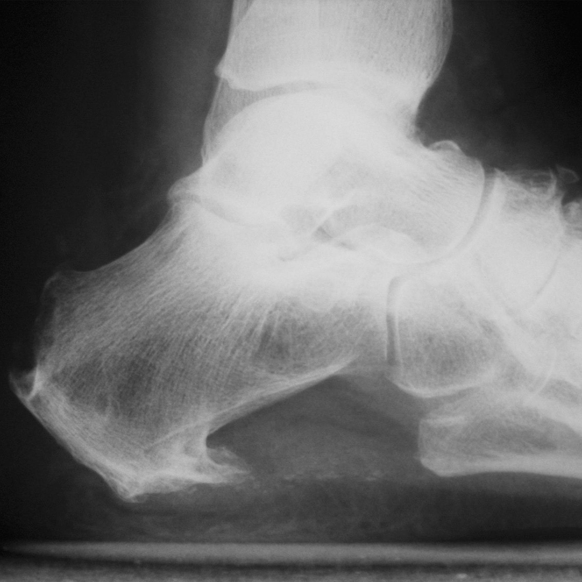 Radiologia espolón calcáneo