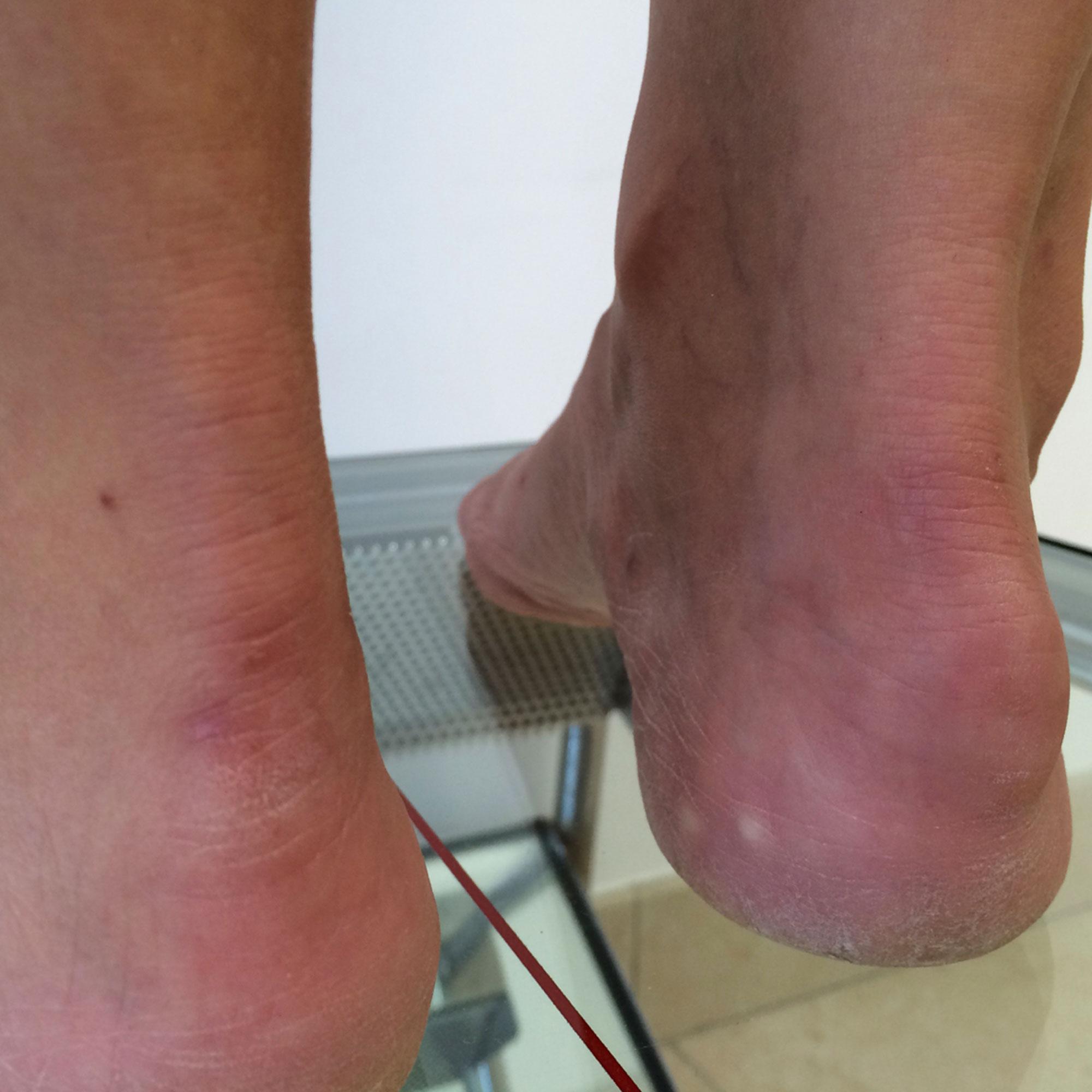 Imagen clínica de tendinitis crónica de tendón de Aquiles (Enfermedad de Haglund)