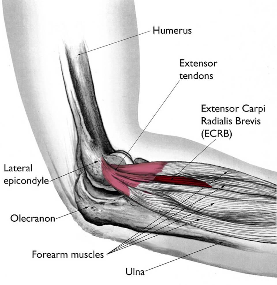 El Codo del Tenista o epicondilitis lateral